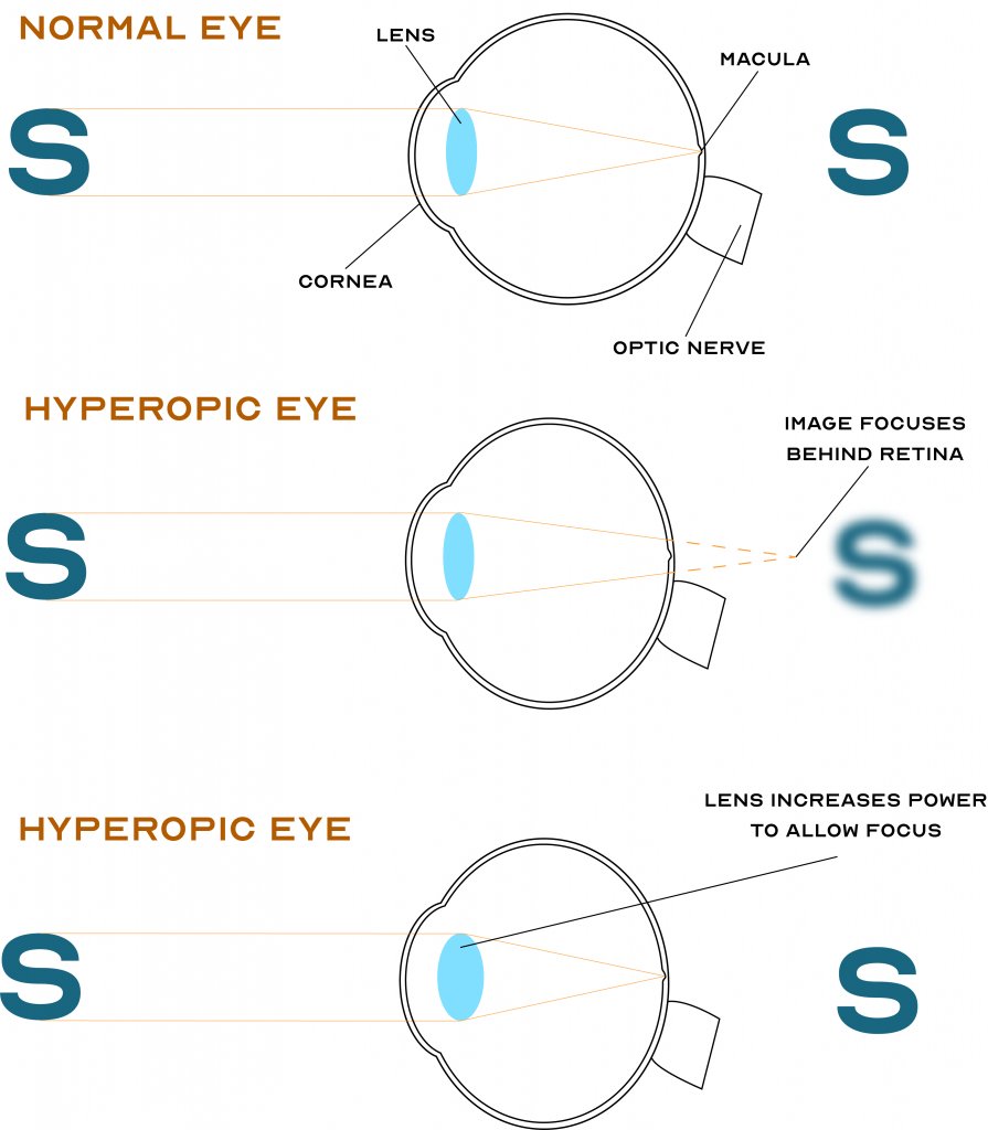 Hyperopia Long sight farsight Optometry Eye